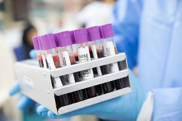 Novo tipo de exame de sangue fornece diagnóstico mais confiável da doença de Alzheimer