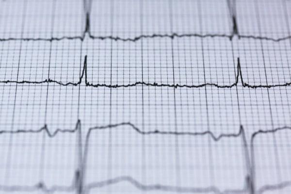 Inteligência Artificial usa combinação de resultados de ECG e Raio-X para diagnosticar arritmia