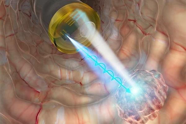 Rumo à detecção in vivo da progressão do câncer usando LEDs polarizados circularmente