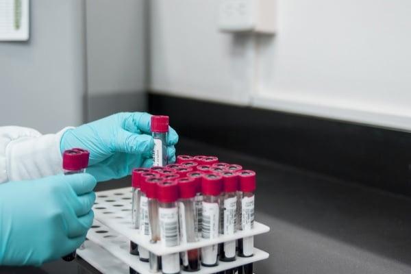 Novo teste de DNA no sangue pode permitir tratamento personalizado de pacientes com câncer