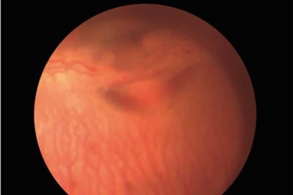 Pesquisa sobre implantes intravítreos como tratamento da neovascularização ocular alcança destaque internacional