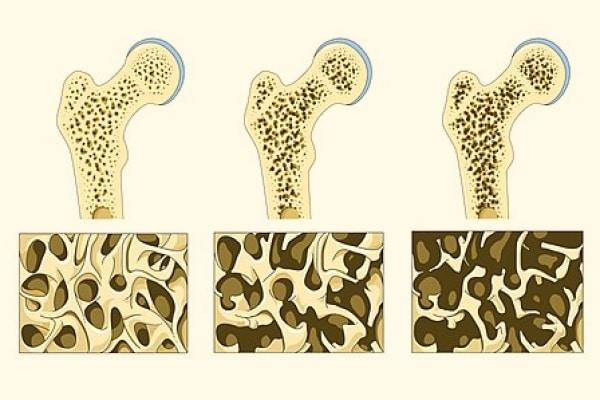 Fonte: Laboratórios Servier via Wikimedia Commons