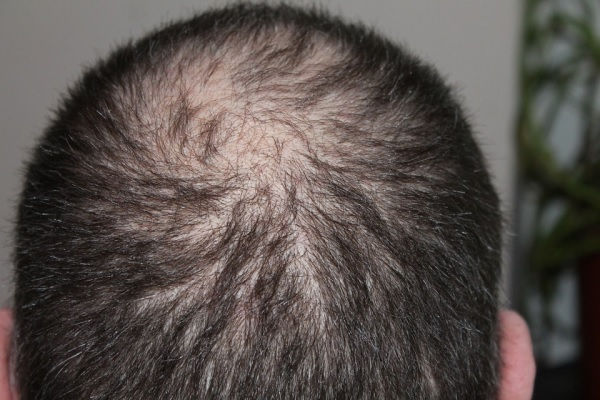 Cientistas usam nanozimas na epiderme com microagulhas dissolvíveis para rápida regeneração do cabelo
